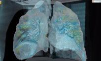 Video 3D về tổn thương phổi của bệnh nhân nhiễm virus Corona Vũ Hán