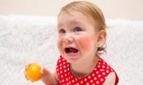 Vaccine cứu sinh có thể gây sốc phản vệ do dị ứng thức ăn ở trẻ em