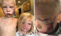 Mạo hiểm cứu em gái khỏi chó cắn, cậu bé 6 tuổi phải khâu 90 mũi trên mặt