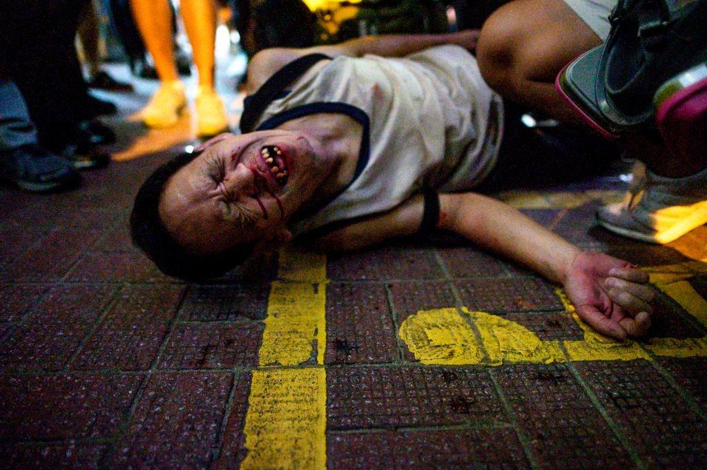 Sự việc ở Hong Kong, là để người dân Hong Kong, Đài Loan và mọi người trên khắp thế giới nhìn thấu sự tàn bạo của ĐCSTQ. (Getty)