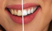 """Làm sạch cao răng với dâu tây và bột nở - bí quyết """"thắp sáng nụ cười"""""""