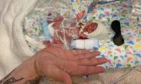 Em bé chào đời nhỏ hơn bàn tay và có 10% cơ hội sống sót đã được về nhà