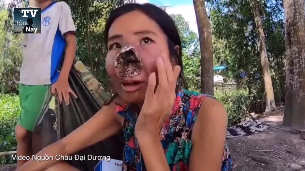 Vi khuẩn ăn thịt người đã xuất hiện nhiều nơi trên thế giới. Trong đó, số ca mắc bệnh tại Việt Nam đang có xu hướng tăng lên trong vài năm gần đây.
