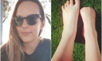 Massage chân bằng cá gặm da chết, người phụ nữ bị nhiễm trùng phải cắt cụt cả 5 ngón chân