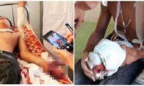 Dùng laptop đang sạc pin để học bài, 3 học sinh ở Hà Tĩnh phải nhập viện cấp cứu