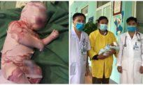 Bé sơ sinh da vảy cá ở Lào Cai đã hồi phục, được chỉ định xuất viện
