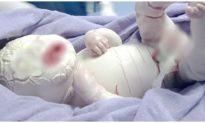 Mắc bệnh hiếm gặp, em bé sơ sinh ở Quảng Ninh chào đời toàn thân phủ lớp sừng trắng, nhiều vết nứt sâu
