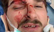Người đàn ông suýt bị nhóm cánh tả đánh chết chỉ vì treo cờ Trump trên chiếc xe của mình