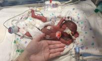 Chỉ 25 tuần tuổi, với 0% cơ hội sống sót, em bé sinh non thần kỳ đã được xuất viện về nhà