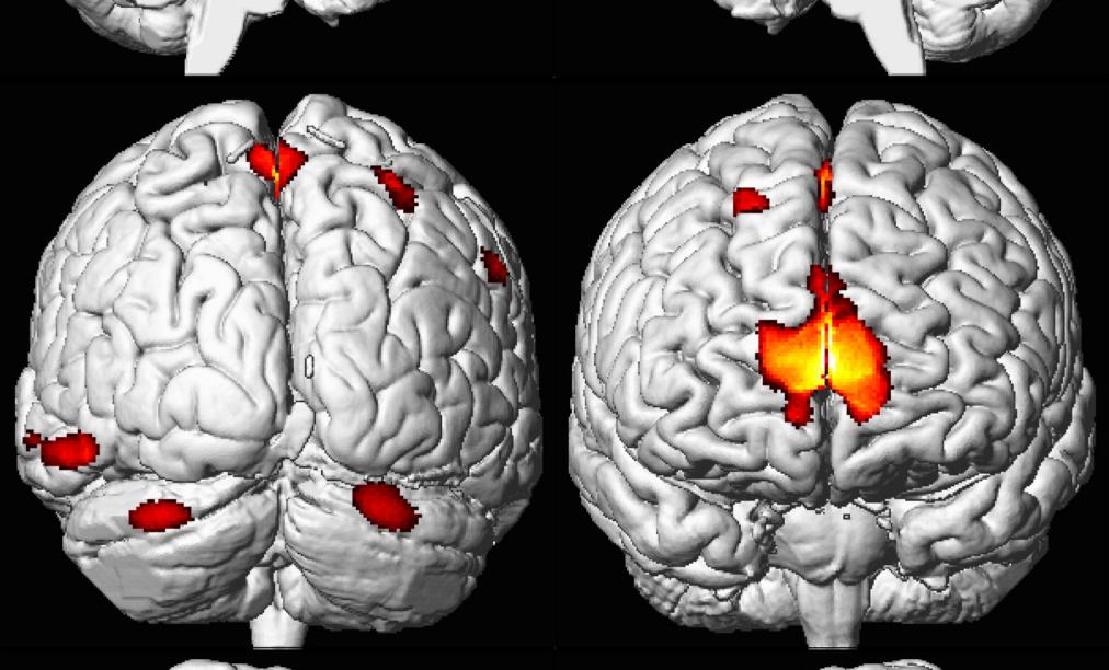 Tuổi thơ nhiễm độc chì dẫn đến giảm diện tích não và thể tích vùng hồi hải mã
