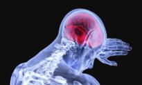 Nghiên cứu: COVID-19 làm tăng nguy cơ đột quỵ