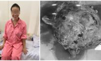 Bóc tách thành công khối u đầu tụy nặng hơn 2 kg trong bụng người phụ nữ ở TP. HCM