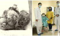 Cắt bỏ khối u quái chứa đầy tóc, răng, xương hàm trong ổ bụng bé gái 7 tuổi ở Quảng Ninh