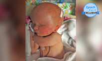 Sinh ra thiếu 2/3 não và không có nhãn cầu, em bé vẫn sống sót kỳ diệu bất chấp dự đoán của các bác sĩ