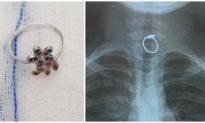 Gắp chiếc nhẫn khỏi thực quản bé gái 10 tuổi ở TP. HCM