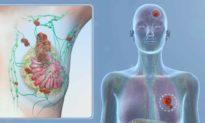 Phụ nữ tầm soát ung thư vú sớm ở độ tuổi 40, lợi hay hại? Câu trả lời: Không có lợi, vì sao?