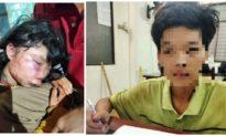 Bắt được nghi phạm đánh nữ sinh lớp 6 ở Bà Rịa - Vũng Tàu bất tỉnh trong lô cao su