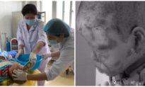 Tự mua cồn về đốt thử, bé trai 10 tuổi ở Quảng Ninh bị bỏng nặng