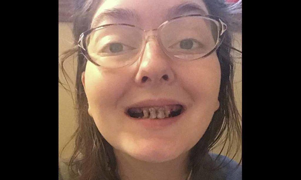 Uống rượu bia và lười đánh răng trong thời gian dài, người phụ nữ chia sẻ bức ảnh sâu răng gây sốc