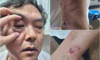 Luật sư Trung Quốc bị tấn công và đuổi khỏi địa phương do ủng hộ nhân quyền