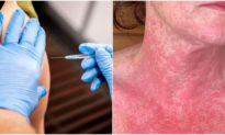 Người tiêm vaccine COVID-19 AstraZeneca tại Việt Nam an toàn, nhiều ca trên thế giới bị đông máu, dị ứng, tử vong...
