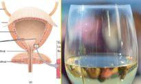 Mắc bệnh lạ, người phụ nữ có bàng quang biến nước tiểu thành rượu