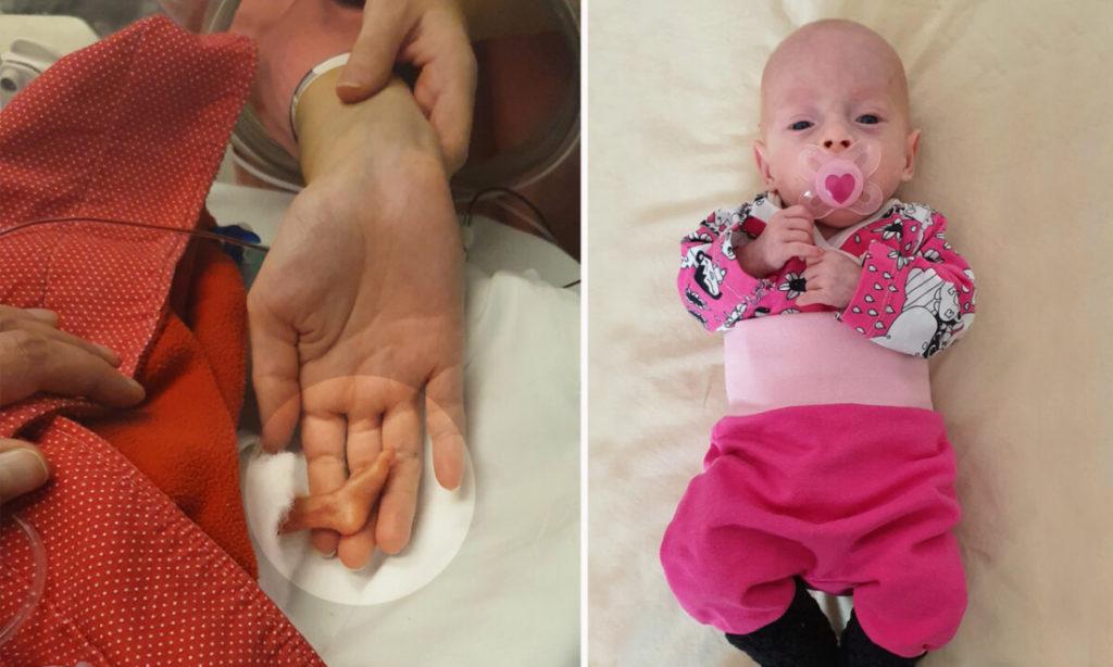 Em bé 'tí hon' nặng 0,5 kg với bàn chân chỉ bằng nửa ngón tay mẹ đã sống sót kỳ diệu