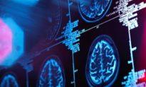 Phát hiện não bộ bị mất chất xám ở những người hồi phục sau COVID-19