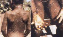 Hoa Kỳ phát hiện trường hợp bệnh đậu mùa khỉ hiếm gặp đầu tiên trong 18 năm