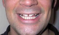 3 nguyên nhân khiến kẽ răng ngày càng rộng
