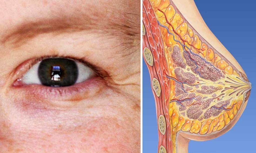 Vì sao phụ nữ sau 30 tuổi bị lão hoá và dễ mắc ung thư vú?