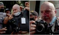 Phóng viên hãng AP bị mật vụ Cuba đánh đập; BLM lên án nước Mỹ và ủng hộ chế độ độc tài Cuba