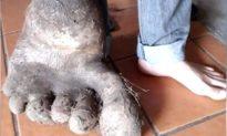 Người nông dân Brazil đào được củ khoai tây to như 'bàn chân người khổng lồ'
