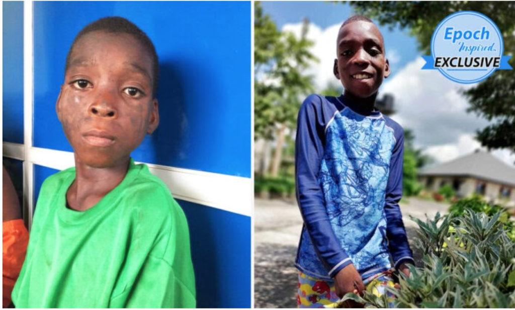 Cậu bé được tìm thấy trong tình trạng suy kiệt, không mảnh vải che thân: Hành trình được chữa lành