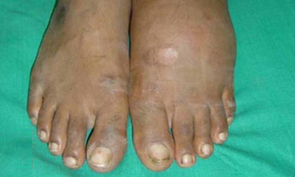 3 triệu chứng trên bàn chân cho thấy bạn đang bị thận yếu