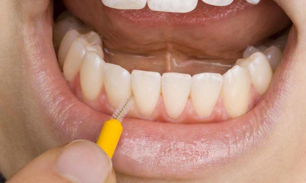 Tại sao răng bị ố vàng dù vệ sinh đều đặn hàng ngày?