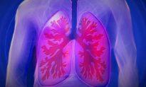 Đừng coi thường các triệu chứng khó chịu ở phổi hoặc cổ họng vào mùa thu đông