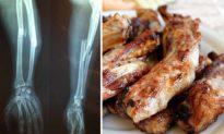 Bị gãy xương không nên ăn gì? Làm sao để xương bị gãy liền lại nhanh nhất?