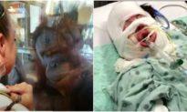 'Tan chảy' trước hành động đười ươi cảm thông với vết thương của cô gái bị bỏng nặng
