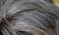 Chú ý: Vị trí mọc của tóc bạc có thể báo hiệu vấn đề sức khoẻ nội tạng