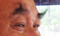 Vì sao lông mày của một số người dài ra sau 50 tuổi?