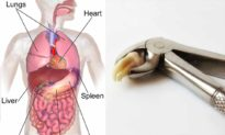 Vị trí nhổ răng quyết định cơ quan nội tạng nào sẽ bị bệnh tiếp theo