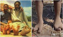 """Bộ tộc người có đôi """"chân đà điểu"""" kỳ lạ ở châu Phi"""