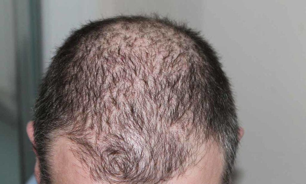 Thay đổi dầu gội đầu thường xuyên có thể gây rụng tóc, ăn gì để ngăn ngừa rụng tóc?