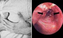 3 vị trí 'đau' trên cơ thể báo hiệu bệnh ung thư phổi