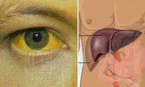 4 tín hiệu trên cơ thể cảnh báo nguy cơ mắc bệnh ung thư gan