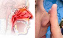 5 cách để cải thiện viêm mũi dị ứng